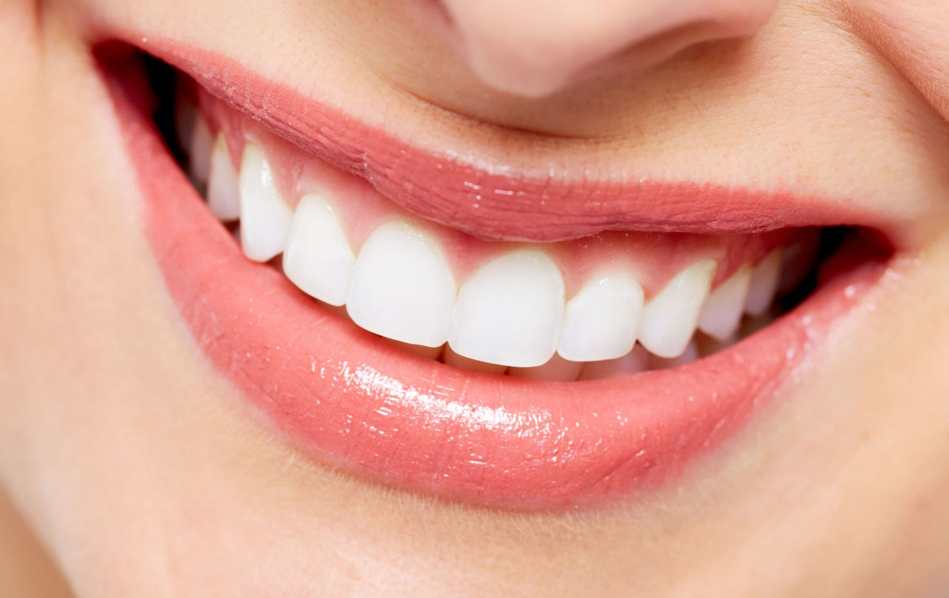 What Is Crest Augmentation?