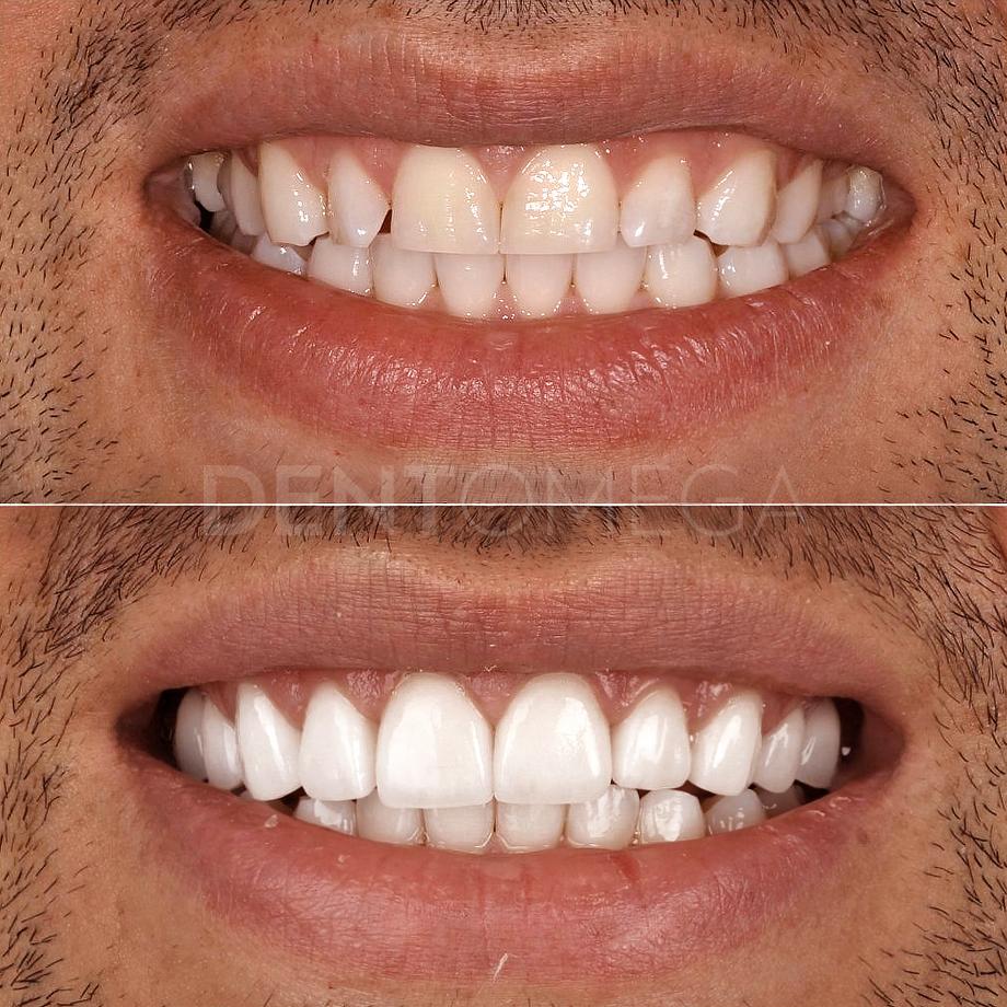dentomega