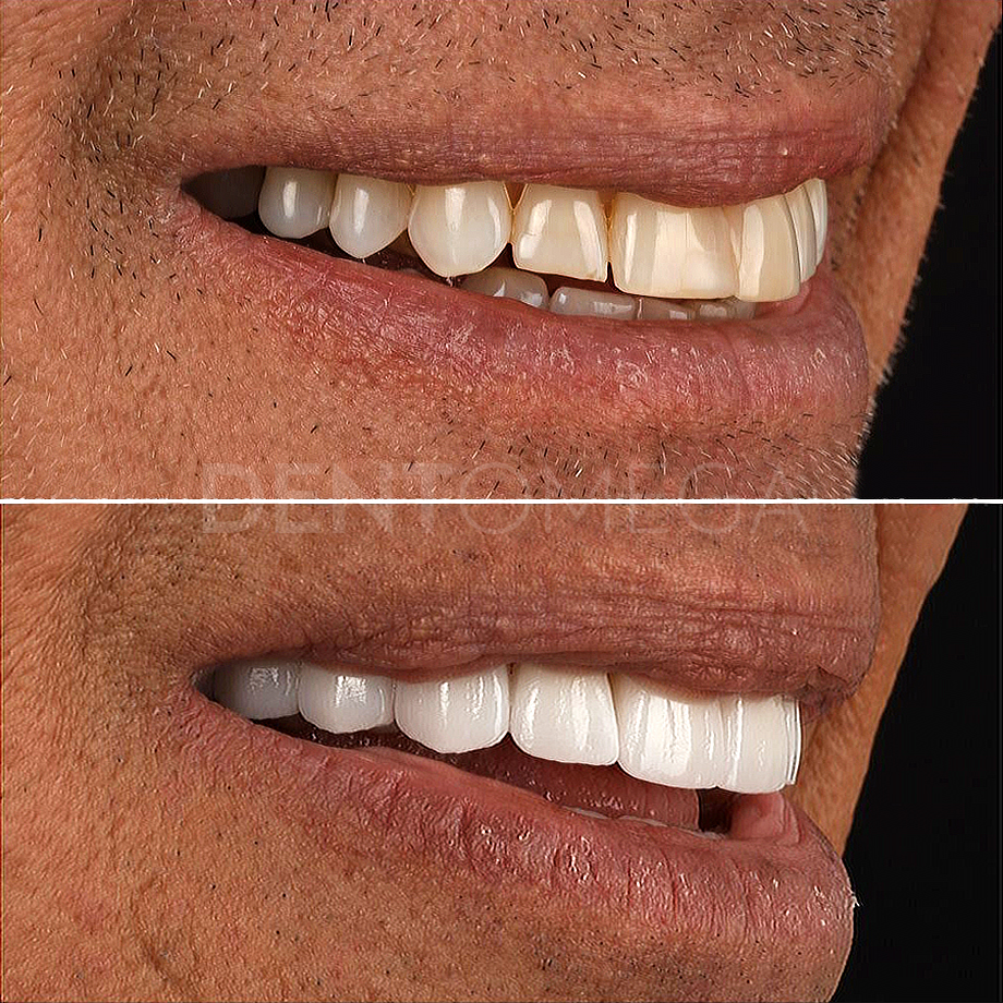 dentomega-before-afterlar10