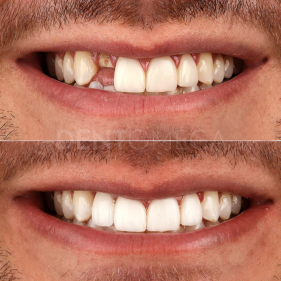 dentomega-before-afterlar3