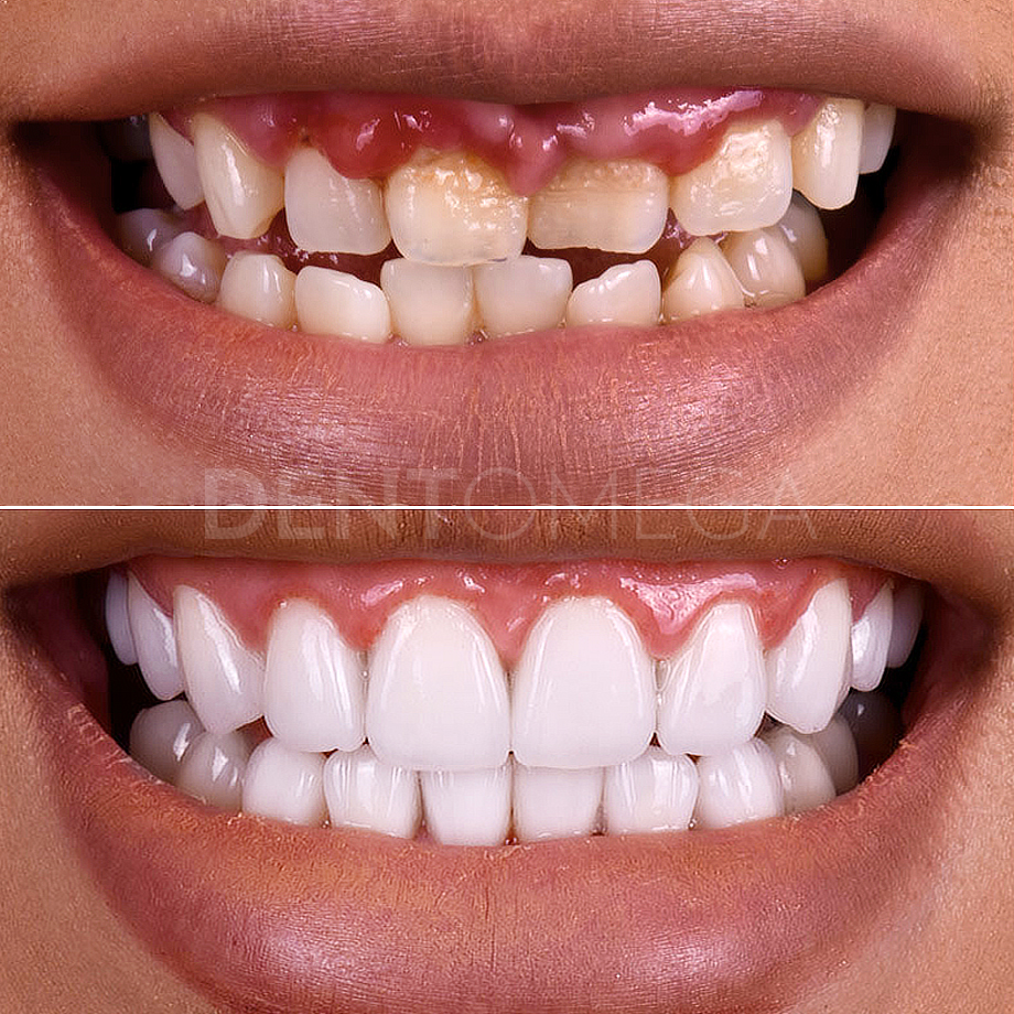 dentomega-before-afterlar4