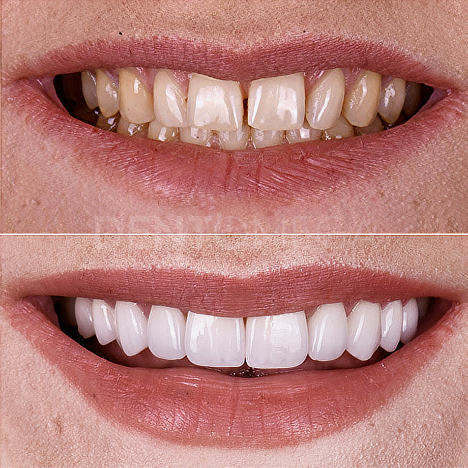 dentomega-before-afterlar5