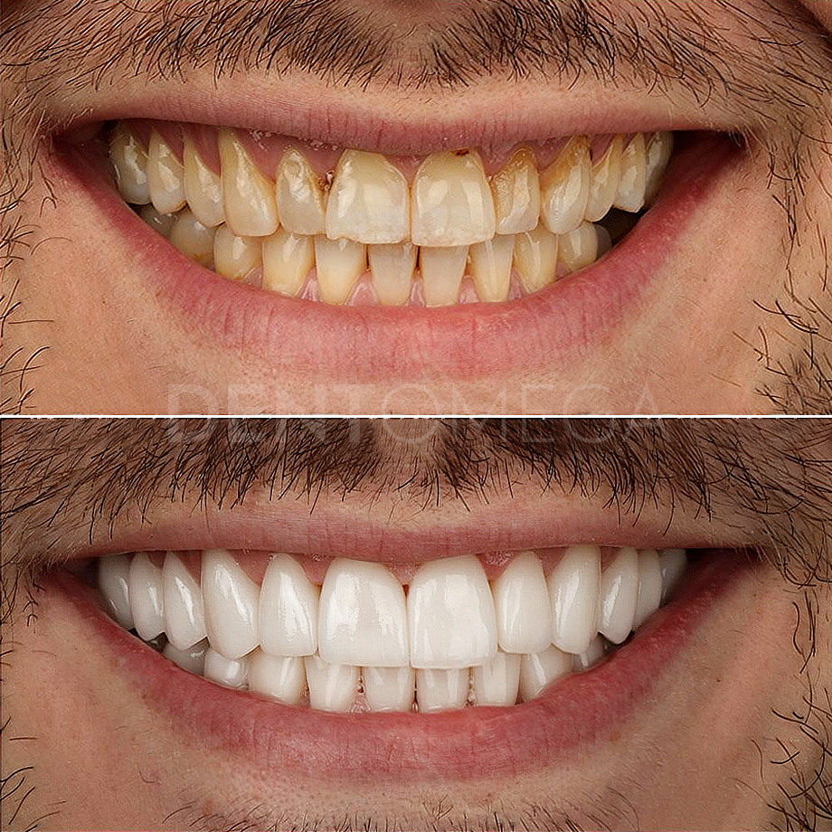 dentomega-before-afterlar6