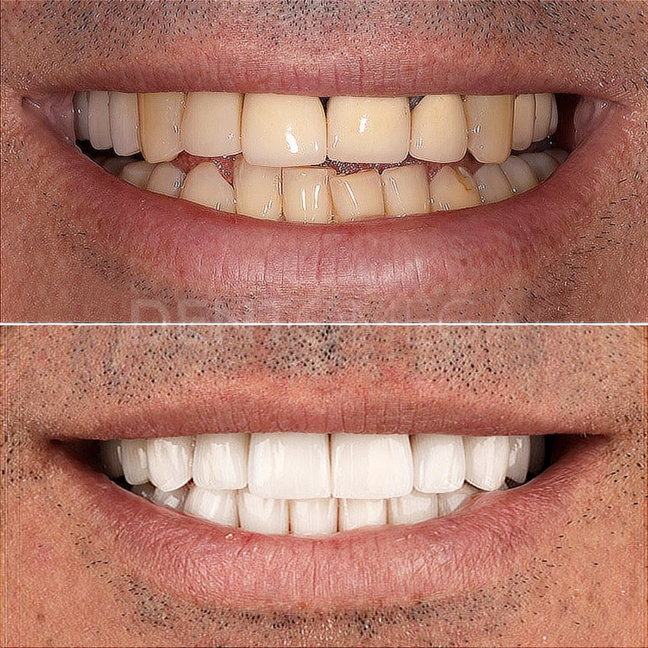 dentomega-before-afterlar7