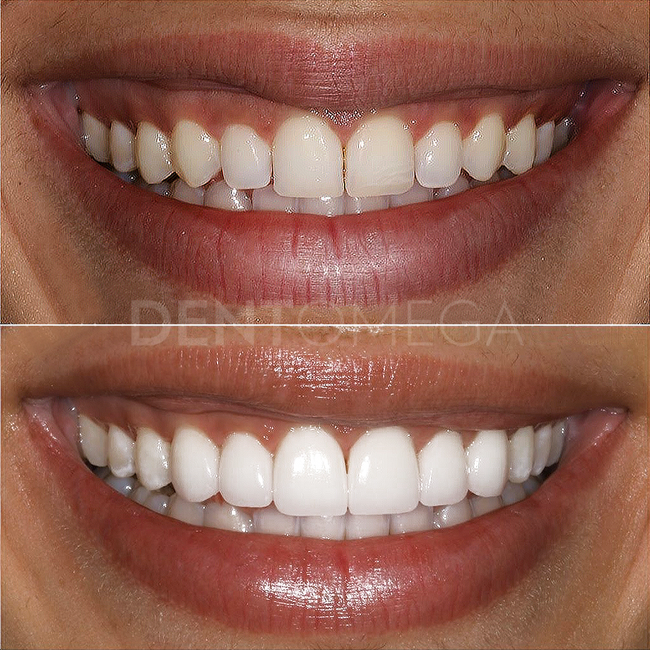 dentomega-before-afterlar8