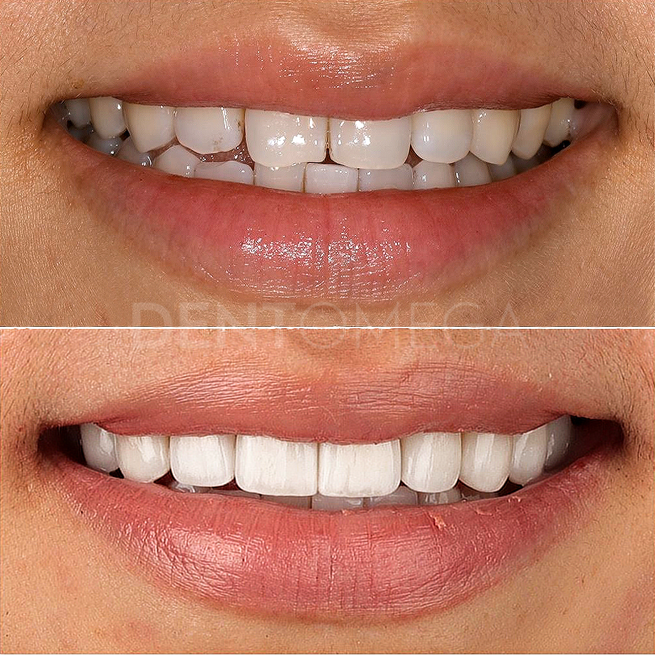 dentomega-before-afterlar9